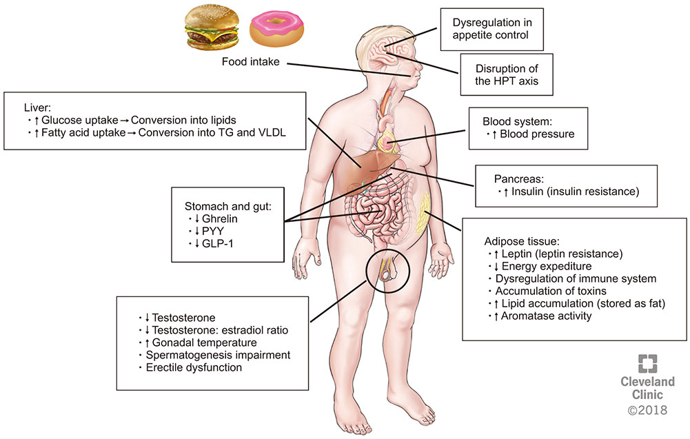 Metabolic Syndrome and Male Fertility